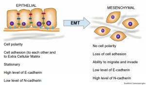 Graphic showing epithelial to mesenchymal transition