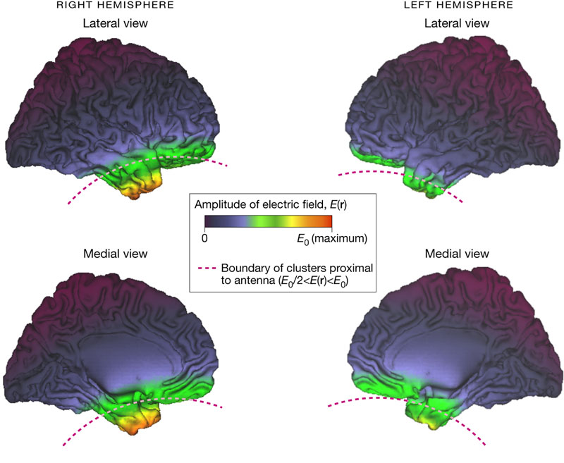 Cell phone radiation alters brain activity | Cellphone